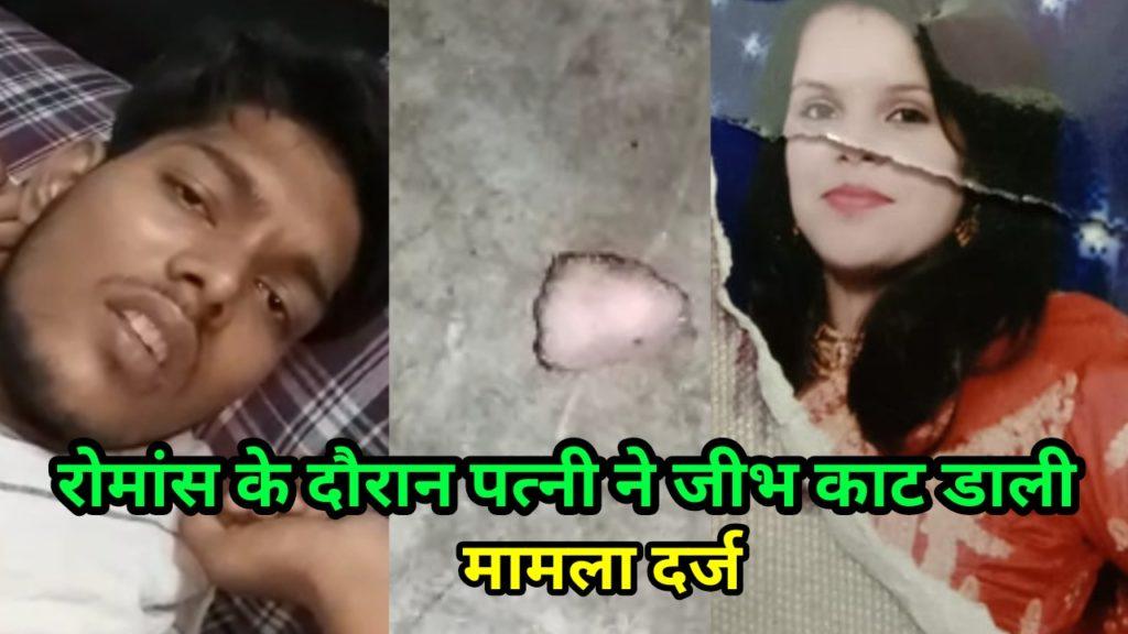 Tongue bite by his wife. Rahaula Delhi